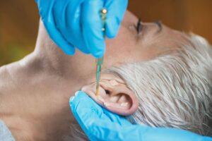 gz akupunkturpflaster UKH7NCT